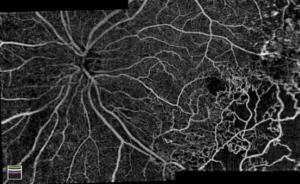 مناطق اضطرابات الدورة الدموية في أوعية الشبكية