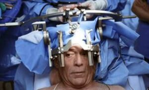 عملية فتح الجمجمة/ الاستئصال الجراحي لأورام الدماغ