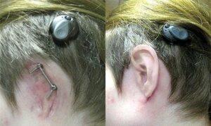 علاج التشوهات الخلقية في الأذن عند الأطفال في روسيا 2