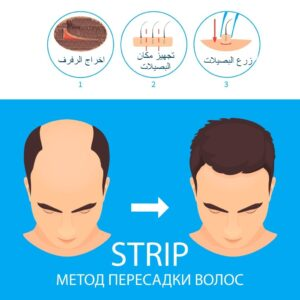 زراعة الشعر طريقة STRIP